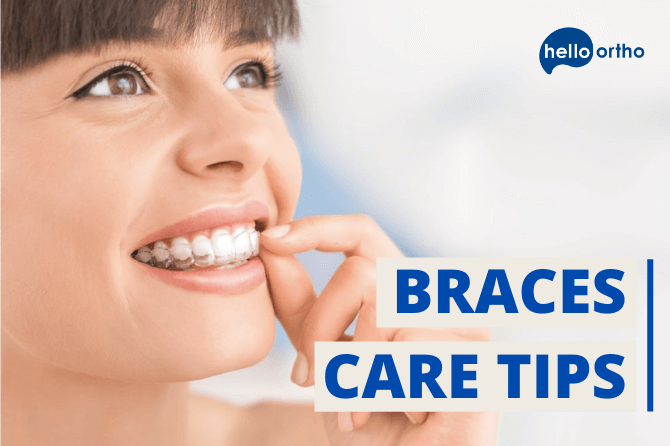 How to Take Care of Your Braces- Braces Care Tips