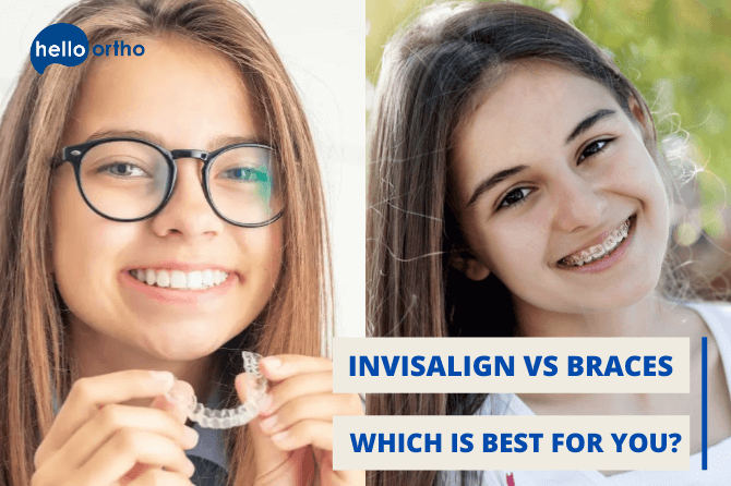 Invisalign vs Braces – Which is Best for You?