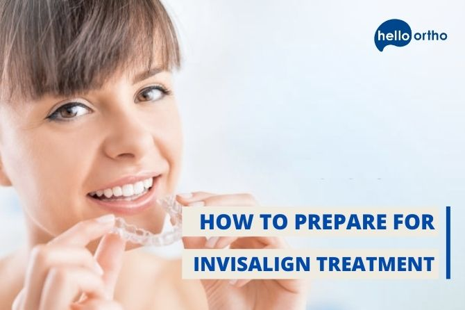 How to Prepare for Invisalign Treatment