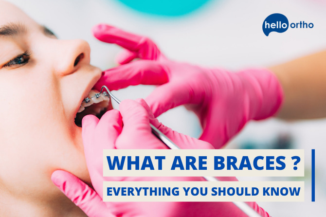 What are braces and what do they do? – Everything You Should Know