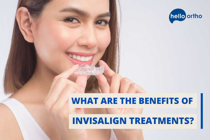What Are The Benefits of Invisalign Treatments?
