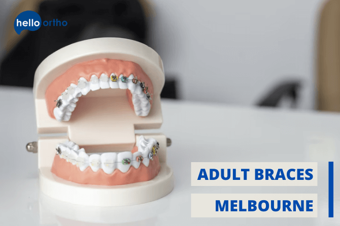 Best Options for Adult Braces in Melbourne